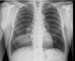 Fig 1: Single frontal upright chest radiograph shows discrete ground glass opacity with consolidation in the right middle lobe