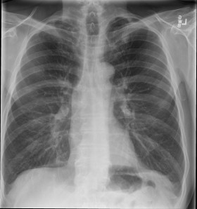 "Single frontal chest radiograph shows a solitary nodule in the left mid lung containing coarse ""popcorn"" calcifications."