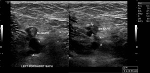 Superficial Venous Thrombus: Transverse ultrasound image through the left calf with and without compression technique shows a distended, noncompressible short saphenous vein containing echogenic clot material. The popliteal vein is compressible at this level.