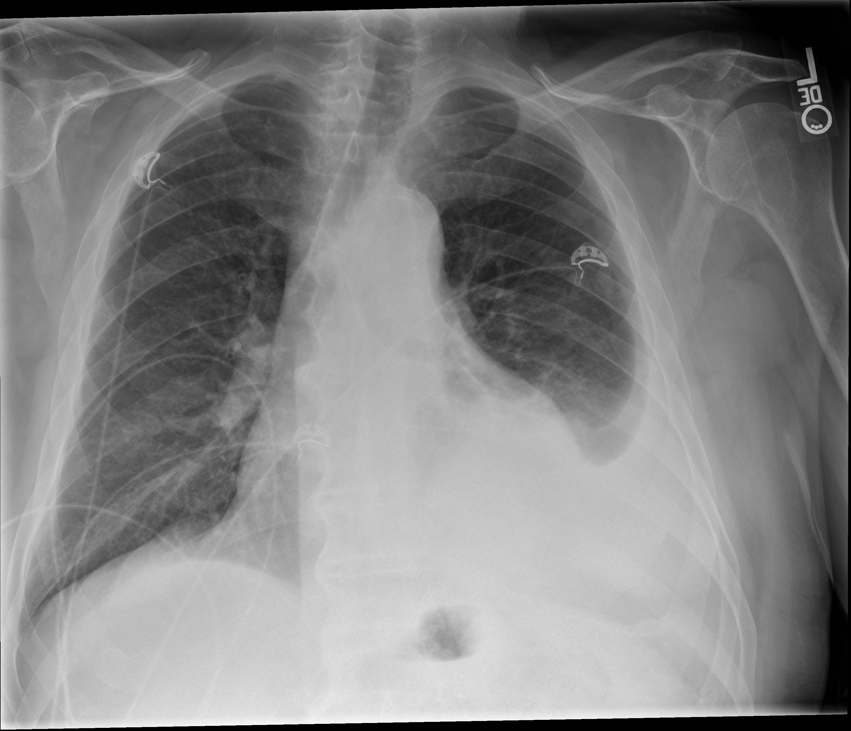 Unilateral Pleural Effusion – Differential Diagnosis ...