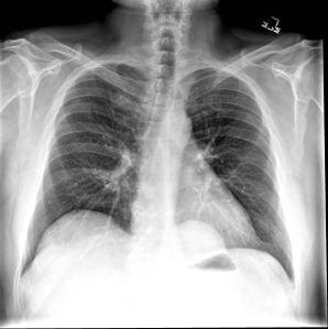 Frontal radiograph of the chest reveals a well defined retrocardiac opacity (arrow).
