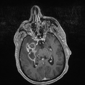Axial T1W Post-contrast MR image with fat saturation reveals a heterogeneously enhancing mass within the right temporal lobe with central necrosis. A solid enhancing component is seen extending medially.