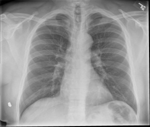 Frontal radiograph of the chest reveals a small rounded opacity at the lateral aspect of the aortic arch (arrow).