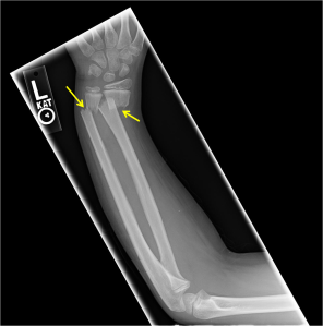 Radiograph of the left forearm shows a both bone (radius and ulna) forearm fracture with ulnar apex angulation and approximately one half shaft width radial displacement of the distal radial fragment and nearly one full shaft width radial displacement of the distal ulnar fragment.