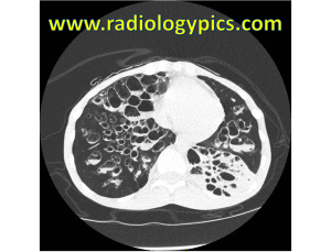 Cystic Bronchiectasis - Axial CT of the chest in lung windows reveals diffuse severe cystic bronchiectasis with air-fluid levels within the bronhci. Additionally, there is left lower lobe consolidation.