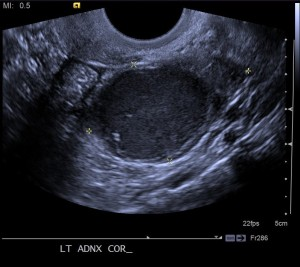 Ultrasound image of the left adnexa reveals a mass within the left ovary with diffuse low level internal echoes with small bright foci near the wall of the mass.