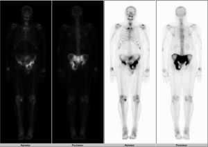 Full body images from a bone scan shows markedly increased radiotracer activity in the pelvis.
