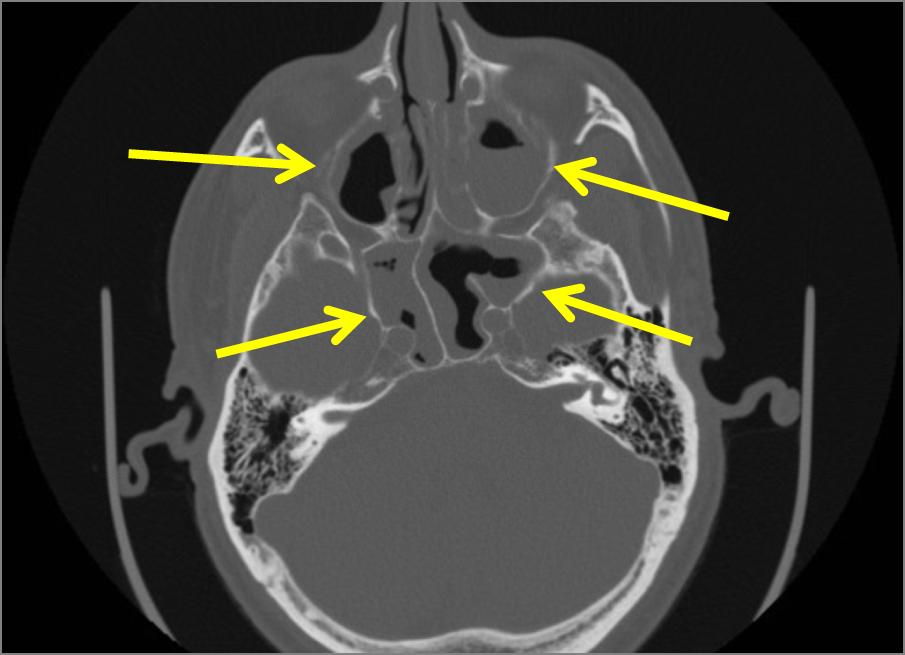 Acute Sinusitis Radiologypics