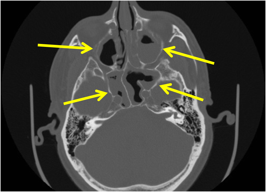 acute sinusitis | radiologypics, Human Body