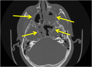 Axial CT of the head in bone window shows areas of sinus mucosal thickening as well as a fluid level in the left maxillary sinus and bubbly secretions in the right sphenoid sinus (yellow arrows)