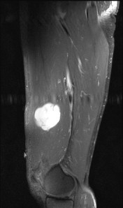 Sagittal T1W MR postcontrast with fat saturation reveals diffuse intense enhancement of the mass.