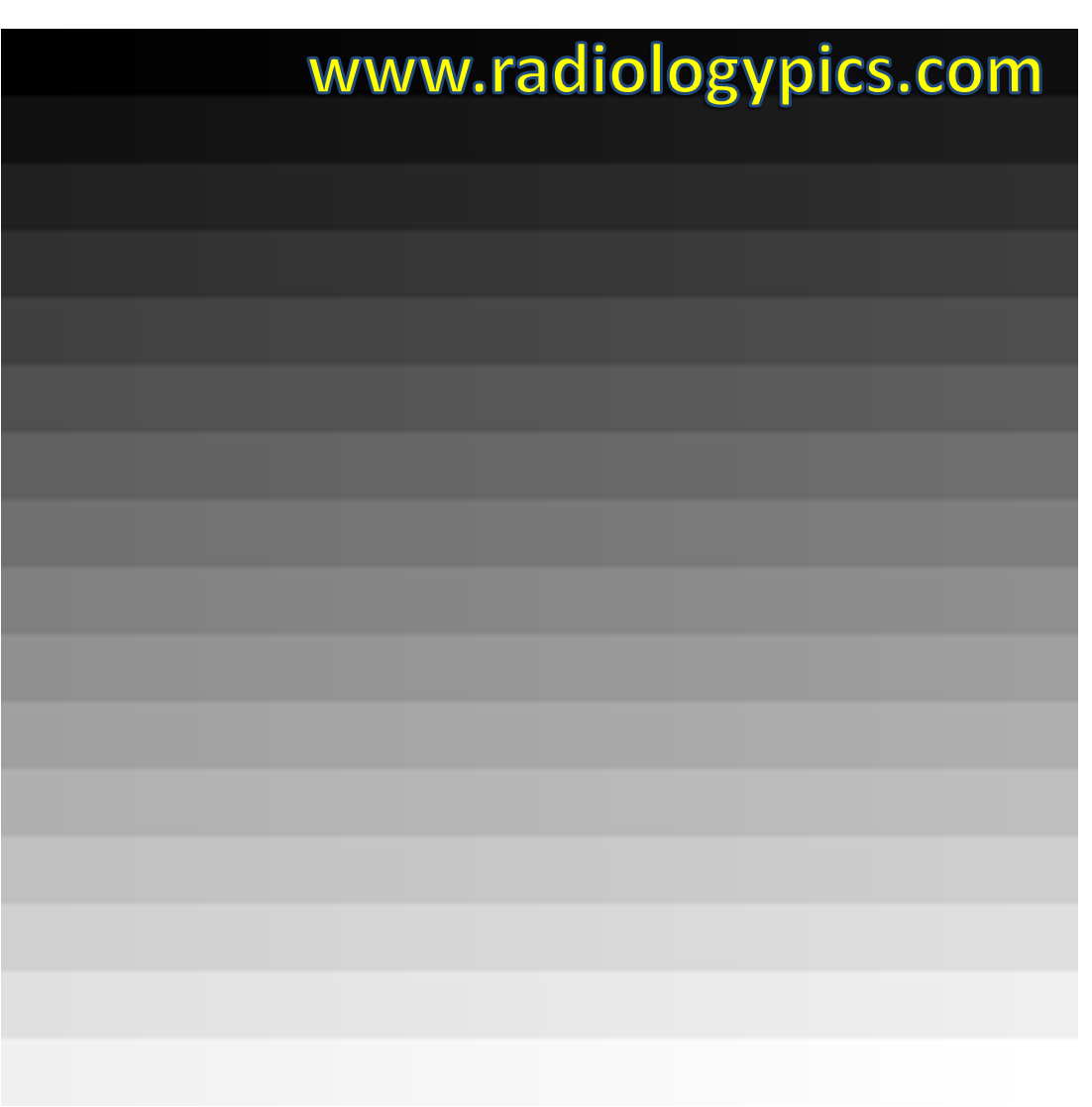 Gray Shades 256 shades of gray – explanation of grayscale | radiologypics