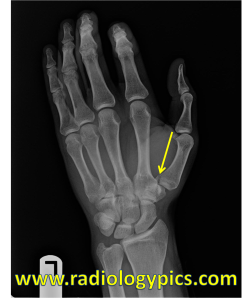 Bennett Fracture: Radiograph of the left hand reveals a fracture at the base of the first metacarpal (yellow arrow). There is adjacent soft tissue swelling. This is the appearance of a Bennett Fracture.