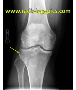 Bosch Bock Bump - Frontal radiograph of the knee reveals a bony excrescence at the lateral tibial rim (yellow arrow), compatible with a Bosch Bock bump, which is a healed Segond fracture.