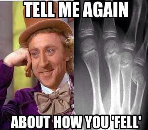 Boxer fracture Willy Wonka