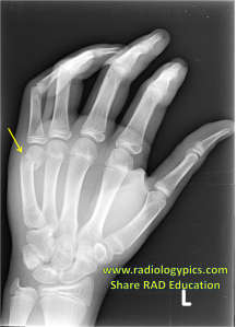Boxer fracture: Radiograph of the right hand reveals a mildly displaced fracture of the head of the 5th metacarpal, with the typical volar angulation that occurs with a boxer fracture.