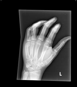 Unknown case # 10 - Oblique radiograph of the hand. What is your diagnosis?