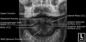 Odontoid view with labels.