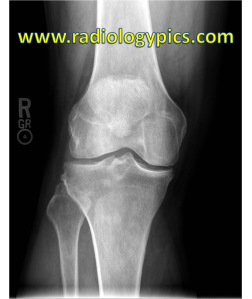 Frontal radiograph of the right knee. What is the finding?