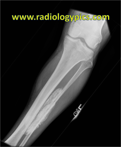 Calcific Myonecrosis: Frontal radiograph of the left tibia and fibula reveal a large sheet like calcified mass projecting over the left fibular diaphysis. See the CT below to see where this mass is located.