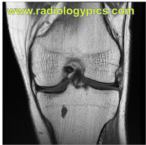 Coronal T1 weighted MRI of the knee. What are the findings?