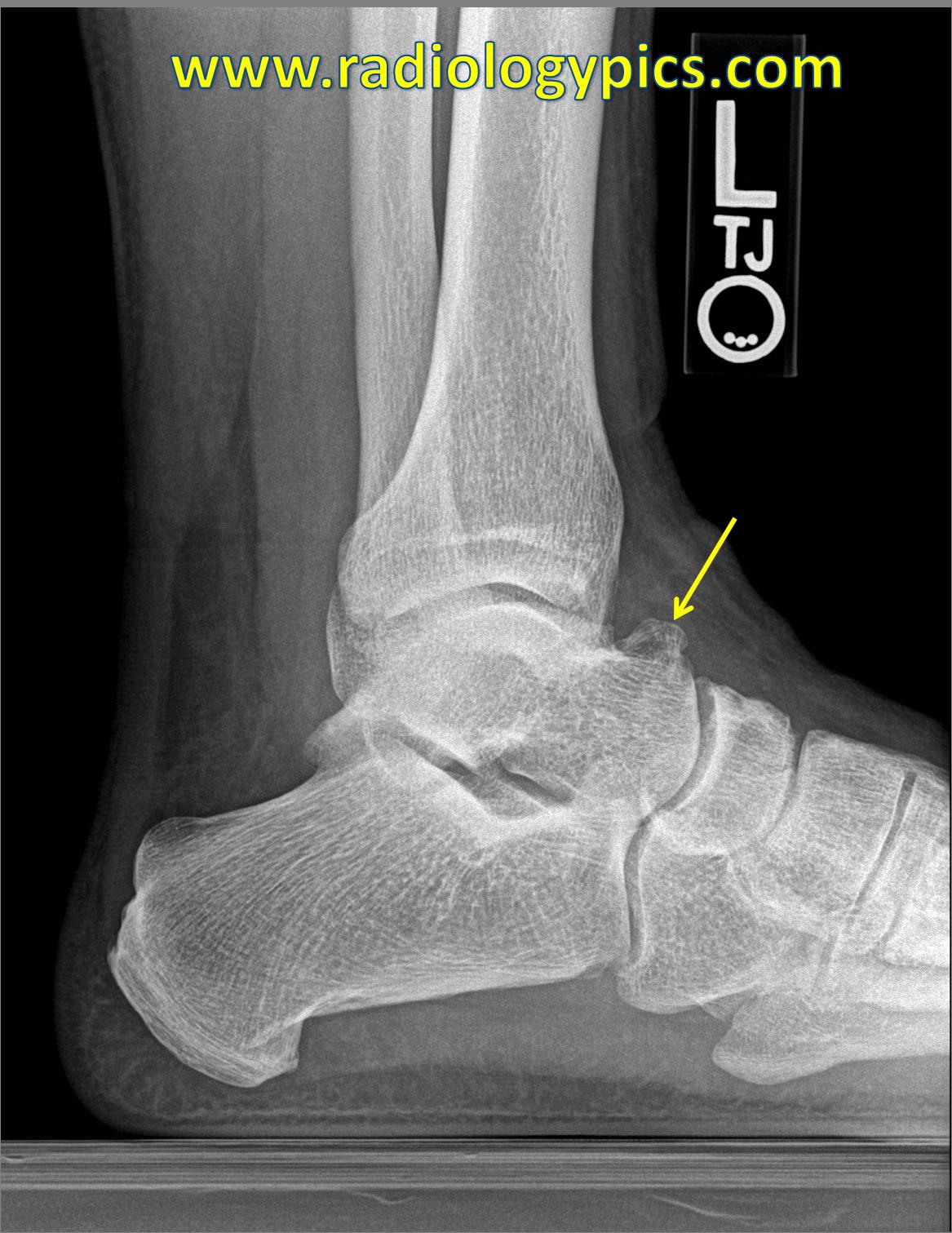 Solution to Unknown Case #37 – Dorsal Talar Osteophyte: A Talar Beak ...