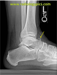 Dorsal talar osteophyte - Lateral radiograph of the ankle reveals a bony excrescence from the dorsum of the talus compatible with an osteophyte. Not there is no evidence of talar beaking or coalition.