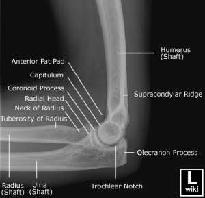 Lateral radiograph of the elbow with labels.