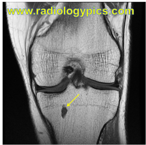 Enchondroma - coronal T1 weighted MRI of the knee in the same patient reveals the lesion is homogeneously hypointense, compatible with an enchondroma.