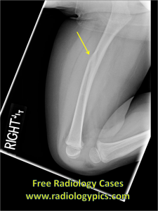 Femur fracture: Lateral radiograph of the right femur reveals an obliquely oriented fracture of the diaphysis, with mild anterior displacement.