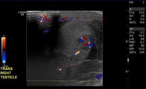 Doppler color ultrasound in the same patient. What are the findings?