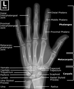 Frontal radiograph of the hand with labels.