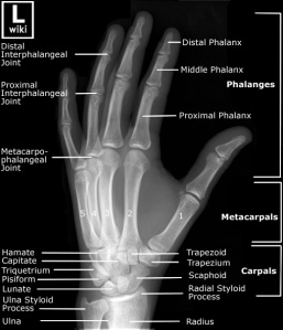 Oblique radiograph of the hand with labels.