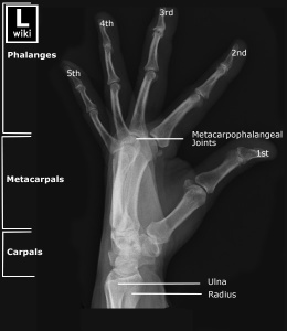 Lateral fanned view of the hand with labels.