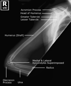 Lateral radiograph of the humerus with labels.