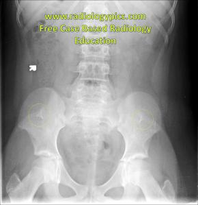 Nail Patella Syndrome: Frontal KUB shows conspicuous iliac horns bilaterally (yellow circles). This finding is an Aunt Minnie for Iliac Horn syndrome, also called Nail Patella Syndrome or Hereditary Osteo-onychodysplasia.
