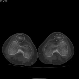 Nail Patella Syndrome: Lower extremity CT shows hypoplastic patella bilaterally, which are also dislocated superolaterally (white circles).