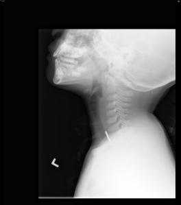 Penny in Esophagus: Lateral radiograph of the neck in the same patient reveals the ingest foreign body is posterior to the trachea, which is patent. This confirms the location of the penny in the lower cervical esophagus.