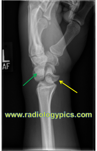 Perilunate dislocation - Lateral radiograph of the wrist reveals proximal and dorsal displacement of the capitate (green arrow) with volar displacement of the lunate (yellow arrow); however, the lunate remains articulated with the radius, indicating this is a perilunate dislocation.