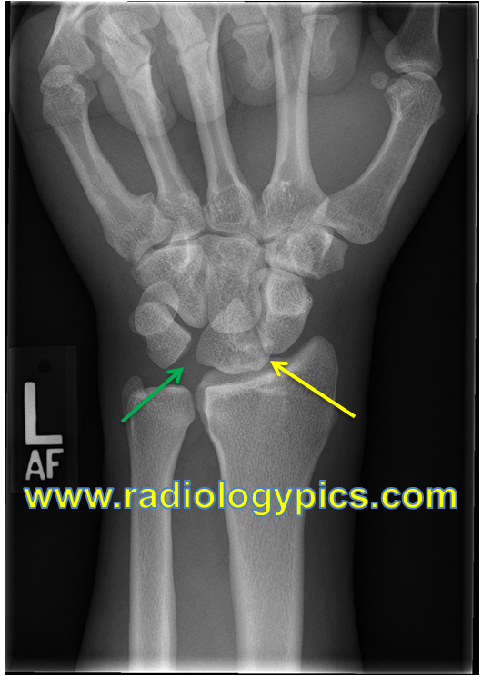 Solution to Unknown Ca... Lunate Dislocation