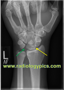 Perilunate Dislocation - Frontal radiograph of the wrist shows a pie shaped lunate (yellow arrow), with widening of the lunotriquetral interval indicating disruption of the lunotriquetral ligament (green arrow).