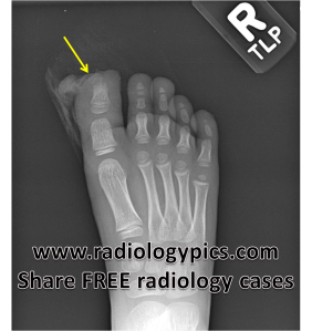 Right toe crush injury: radiograph of the right foot shows an obvious defect at the distal first digit of the right foot (yellow arrow), with underlying destruction of the tuft of the first distal phalanx.