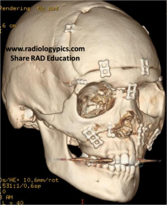 Fibrous Dysplasia Reconstruction: 3D reconstruction of the Head CT above after the patient underwent craniofacial reconstruction.