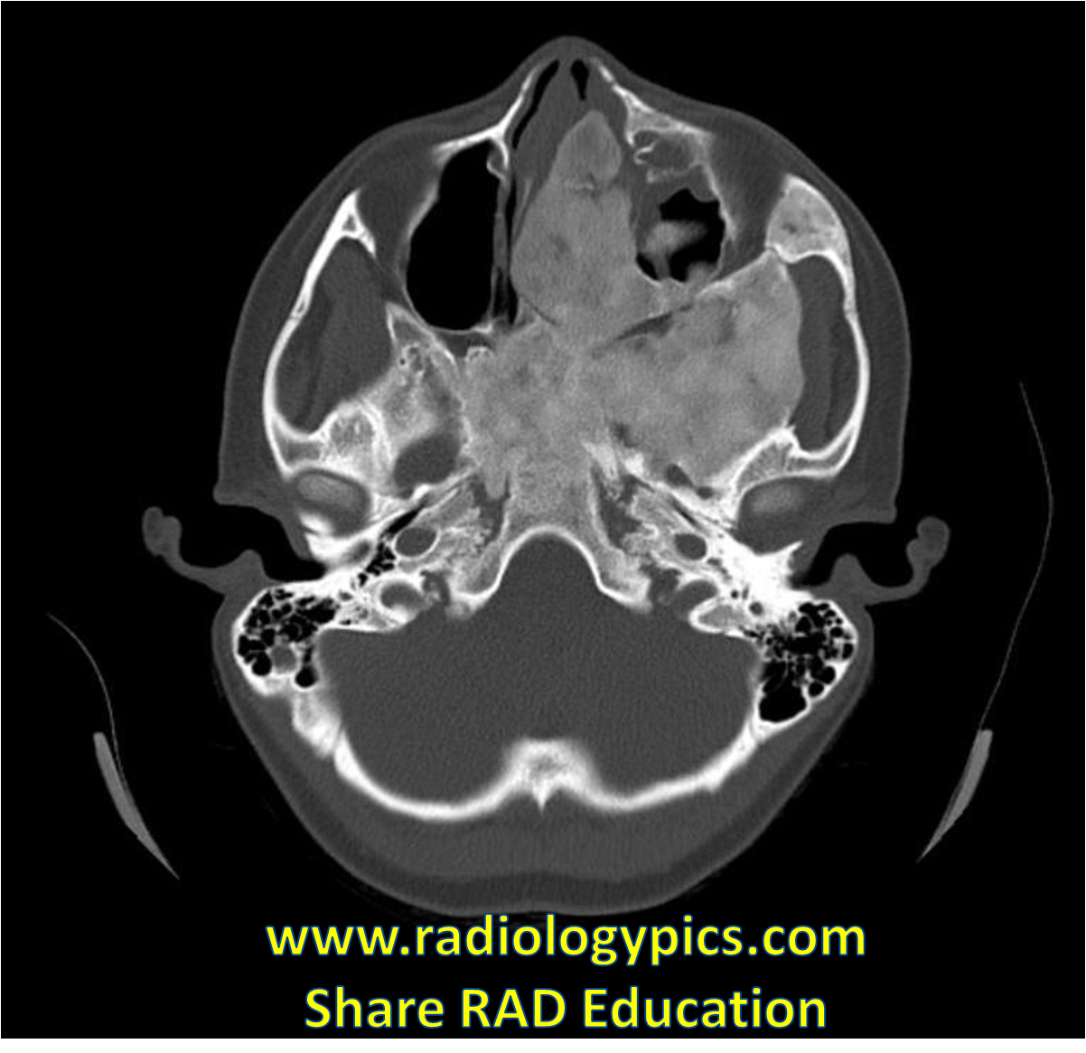 Solution to Unknown Case # 13 – Fibrous Dsyplasia of the Skull Base ...