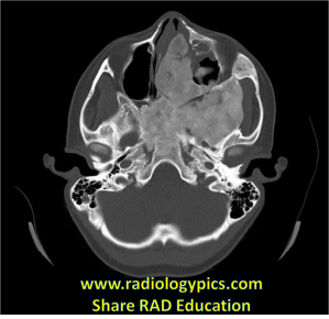 Fibrous Dysplasia of the Skull Base: Axial CT of the head in bone windows reveals a large mostly sclerotic lesion with some areas of mixed attenuation. Note the abrupt transition zone between normal and abnormal bone, characteristic of fibrous dysplasia.