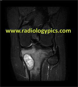 Solitary (Unicameral) Bone Cyst: Coronal STIR MR of the left knee reveals the lesion to be markedly hyperintense with internal septations. There is increased signal in the adjacent marrow, indicating marrow edema, possibly from pathologic fracture which may be seen with solitary bone cysts.