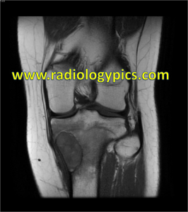 Solitary (Unicameral) Bone Cyst: Coronal T1 weighted MRI reveals the lesion to be hypointense with surrounding hypointesne signal in the adjacent marrow, indicative of marrow edema which is frequently seen with solitary bone cysts.