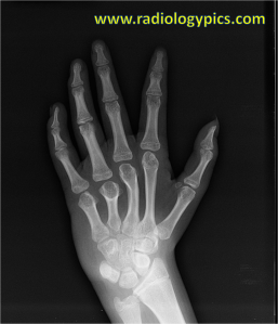 Radiograph of the left hand. What are the findings?