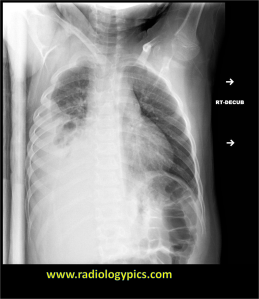 Lateral decubitus radiograph of the chest. What are the findings?