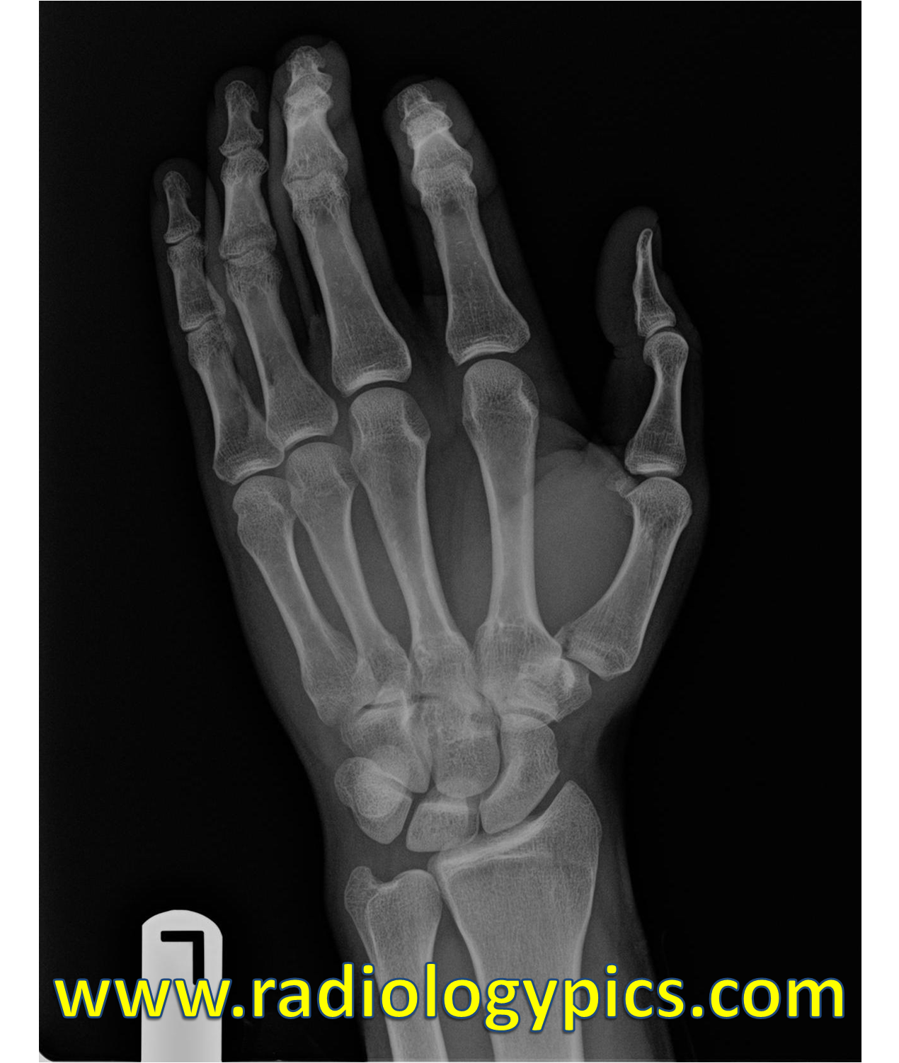 Unknown Case #25 – Hand Radiograph | RADIOLOGYPICS.COM